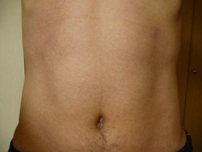 11カ月経過時点の腹筋