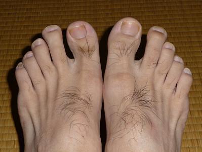 普通の状態の足