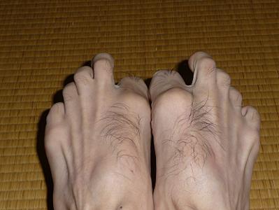 足をグーにする